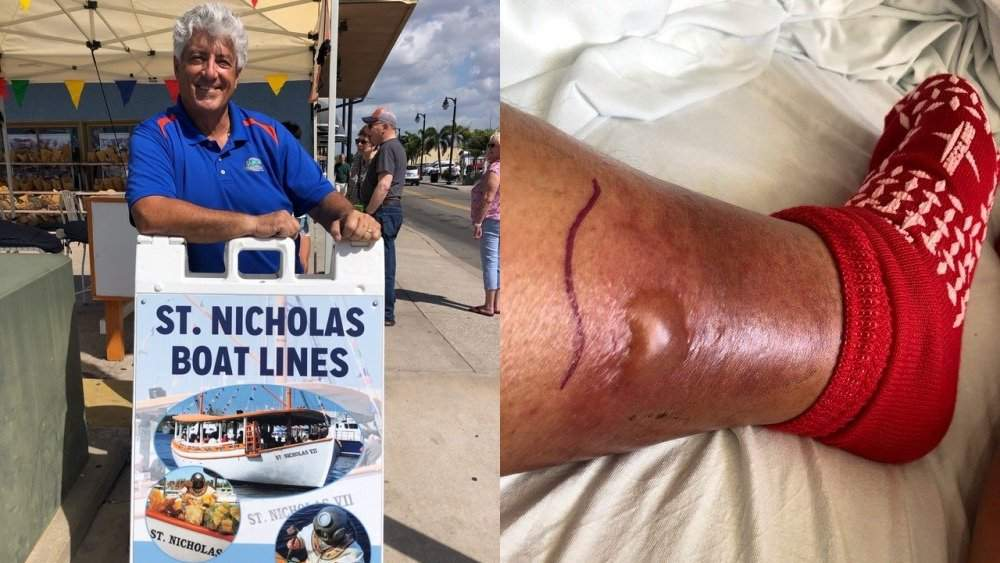 Another case of flesh-eating bacteria sends Tarpon Springs